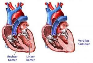 dwarsdoorkijkje hart